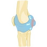 Bakers Cyst Causes